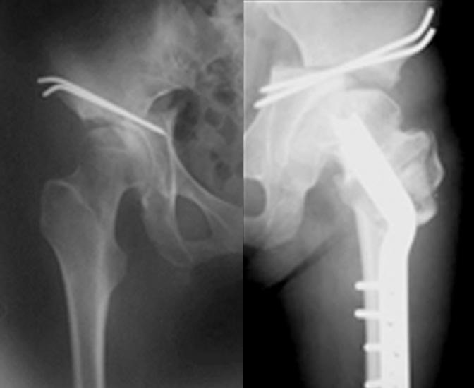 骨切り手術
