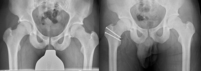 FAIとsurgical hip dislocation後