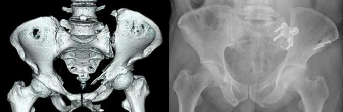 不安定性骨盤輪骨折とその術後